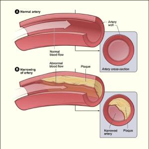 Atherosclerosis_diagram